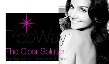 Ny laser for tatoveringsfjerning (PicoWay)